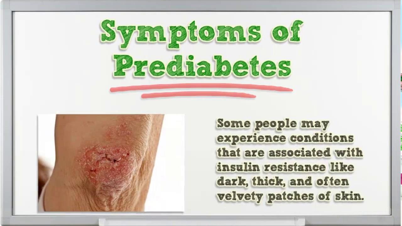 Prediabetes Prediabetes Diet Plan Prediabetes Treatment Home Remedies  Prediabetes Prevention m