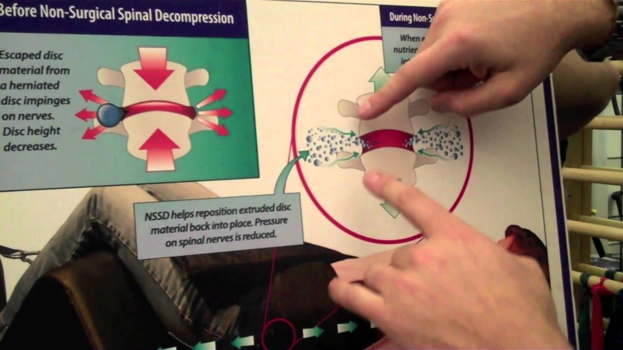 What is neural foraminal narrowing?