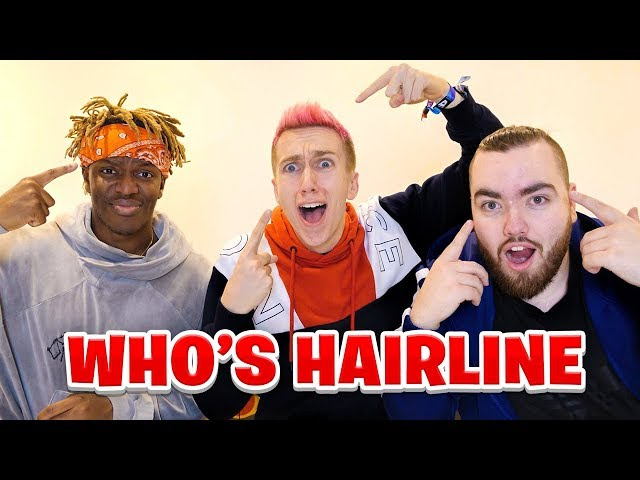 WHOSE HAIRLINE IS IT ANYWAY?