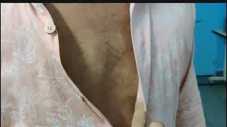Follow up video of gynecomastia