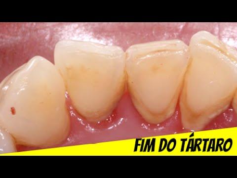 Como Remover O Tartaro Dos Dentes Receita Caseira Facil E Eficaz