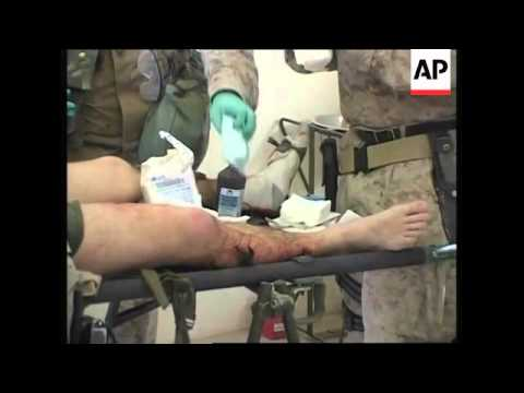 Fallujah Casualties