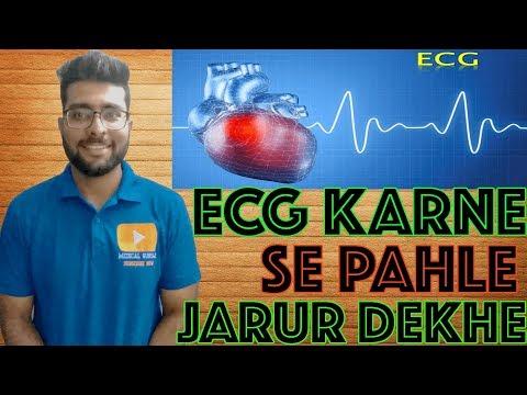 7 points to remember before ECG test || Get the best ECG signal || Medical Guruji