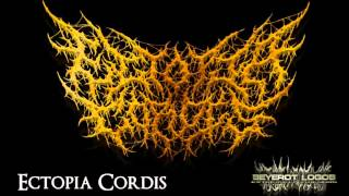 ectopia cordis intestinal engorgement demo song