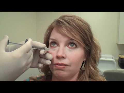 Juvéderm™ Tear Trough Treatment Huntsville Alabama - Dr. David L. Durst