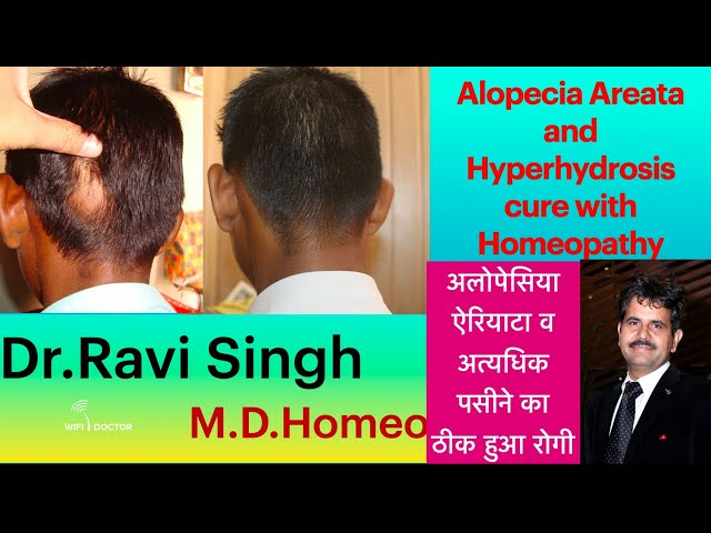 Alopecia and Hyperhydrosis Cured with Homeopathy 6 Years Followup