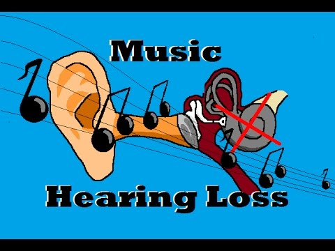 How Does Music Sound with Sensorineural Hearing Loss?
