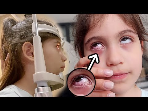 YOU WON'T BELIEVE WHAT WE FOUND INSIDE HER EYE!!! *RUSHED TO THE DOCTORS*