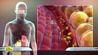 Признаки сахарного диабета 2 типа