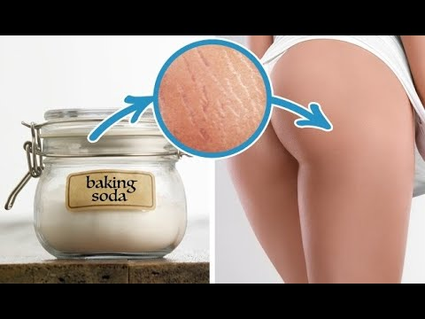 How to Get Rid of Stretch Marks with Baking Soda