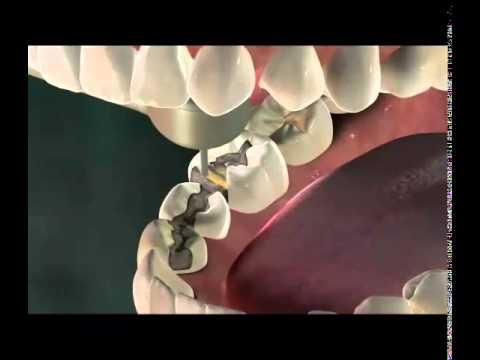 Inlay - Miskin Ajax Dental