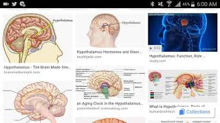 My Invention (Controlling Hypothalamus To Artificially Regulate Body Temperature) ©Jonathan Rodgers