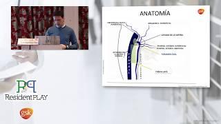 CANCER DE PENE. Linfadenectomía Inguinal Video Endoscopica