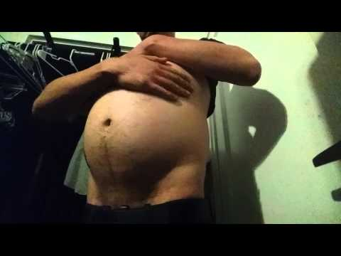 Deep inguinal ring test from YouTube · Duration:  1 minutes 3 seconds