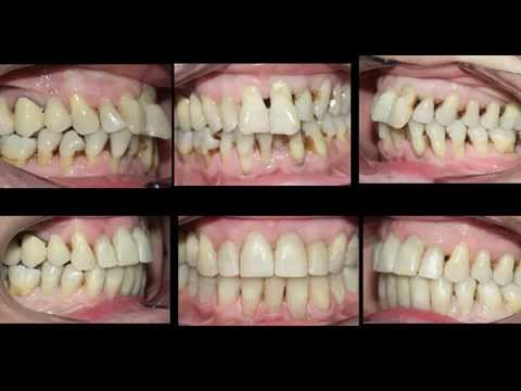 Piorrea dental de la tratamiento