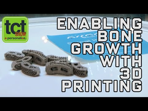 Enabling integrated bone growth with 3D printed metal implants