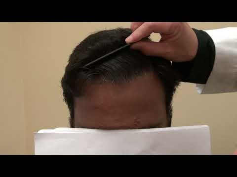 hair-transplant-12th-month-follow-up-restoration-surgery-progress-after-1-year-by-dr.-diep-bald