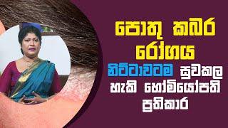 පොතු කබර රෝගය නිට්ටාවටම සුව කල හැකි හෝමියෝපති ප්රතිකාර   Piyum Vila   20 - 05 - 2021   SiyathaTV Thumbnail