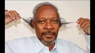 постер к видео   Как удалить волос в ушах. Удаление волос в ушах  лазером