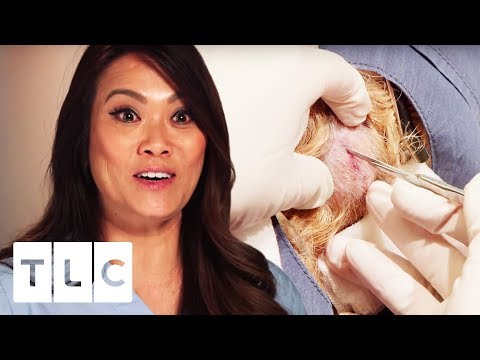 Dr. Pimple Popper | Removing Five 35 Year Old Cysts!