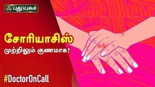 Doctor On Call 22-02-2020 Puthuyugam Tv