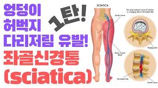 (엉덩이,허벅지통증,다리저림)좌골신경통 해결하는 첫번째…