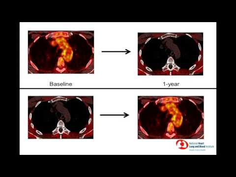 6th Annual TMII Symposium - 2016 - Session IV - Cardiovascular Imaging - Joseph  Lerman