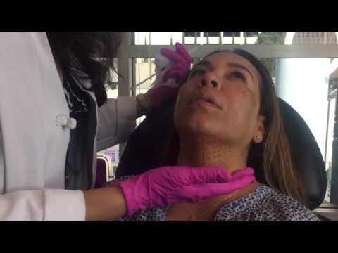 Kybella Chin Fat Melting