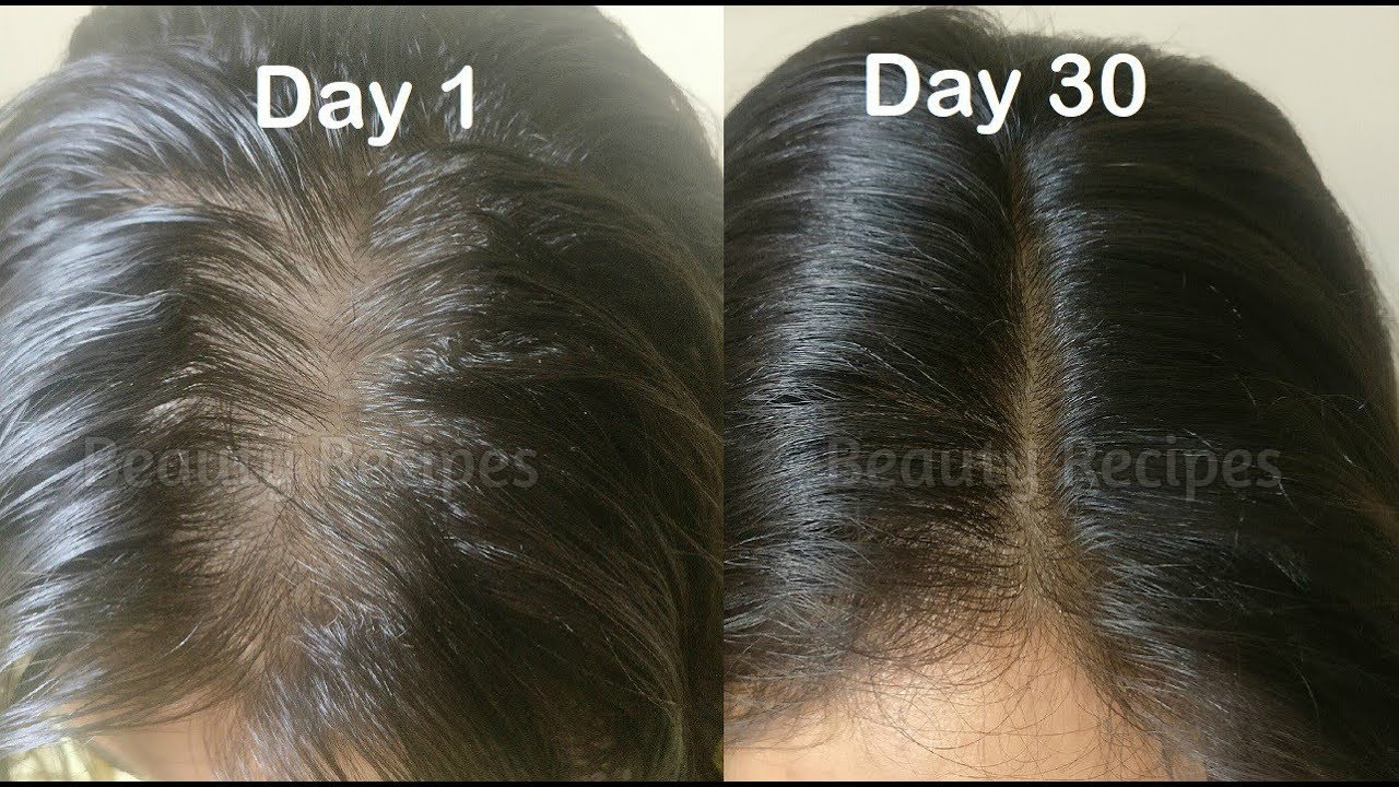 Vitamin E Oil Onion Juice For Hair Growth Long Thick Regrow Lost From Roots