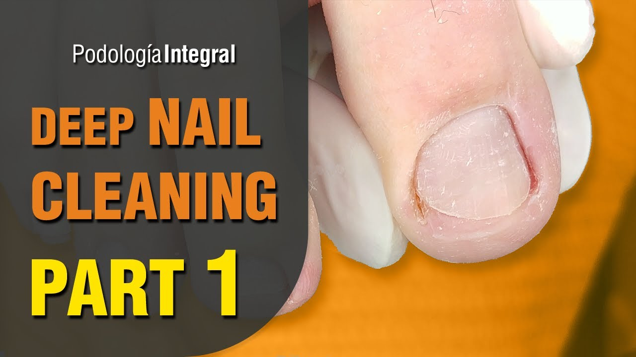 Deep nail cleaning [Part 1] Feet with hyperhidrosis #podologiaintegral