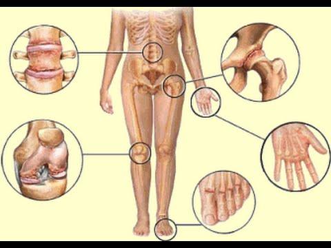 Очистка суставов солей распух сустав на указательном пальце