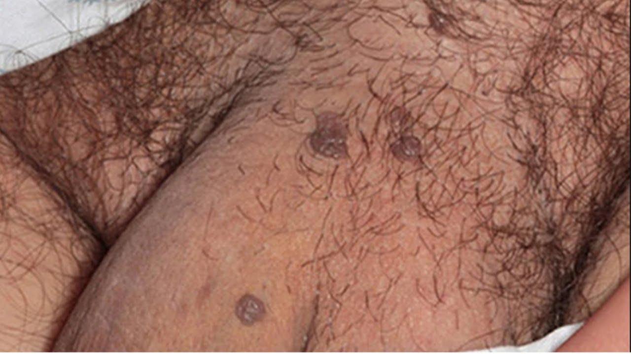 papilomul a apărut pe pleoapa superioară tratamentul papiloamelor și condiloamelor genitale
