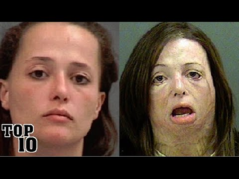 Top 10 Before & After Using Drug Pictures - YouTube