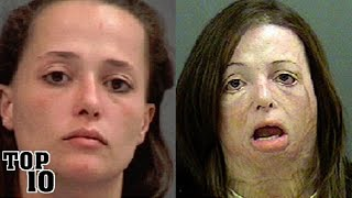 Top 10 Before & After Using Drug Pictures