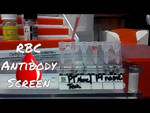 Antibody Screening Test Procedure (Blood Bank)