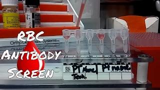 Antibody Screening Test Procedure Blood Banking