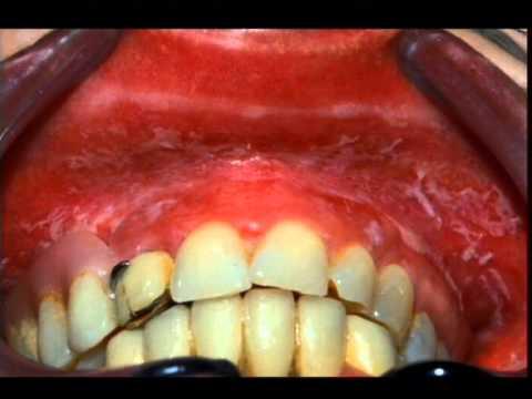 manchas blancas mucosa bucal