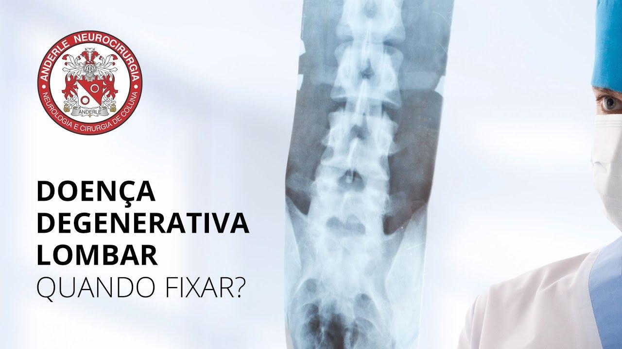 Lombar artrite como curar