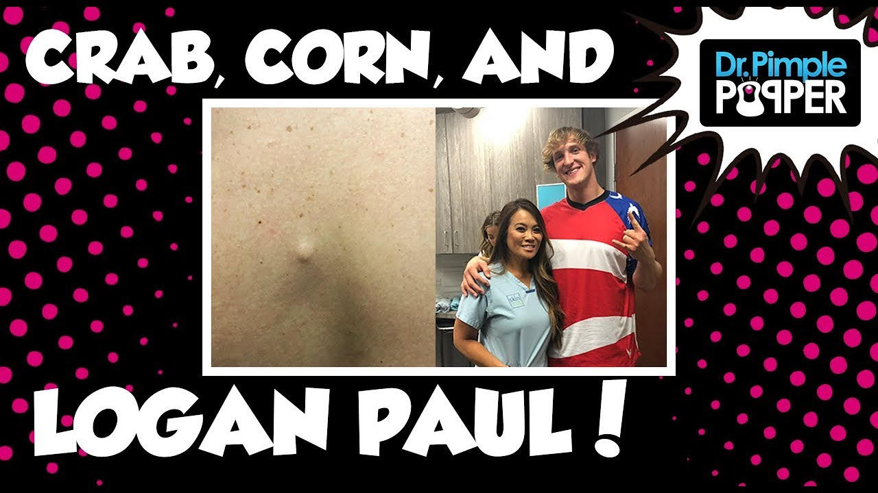 Dr  Pimple Popper Squeezes Cyst Out of Logan Paul, Netizens Disgusted