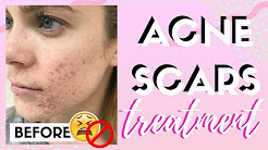 hqdefault - Micro Needling Acne Scars Reviews