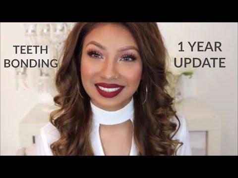 teeth-bonding-|-fixing-gap-teeth-without-braces-|-1-year-update