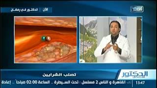 #@gالدكتور_في_رمضان@g | استعداد ليلة العيد .. جولة علمية حول السكر فى الدم مع دكتور أيمن رشوان