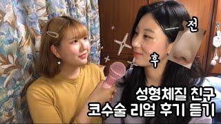 코수술 성형 리얼후기 듣기!(feat.성형체질친구)|매…