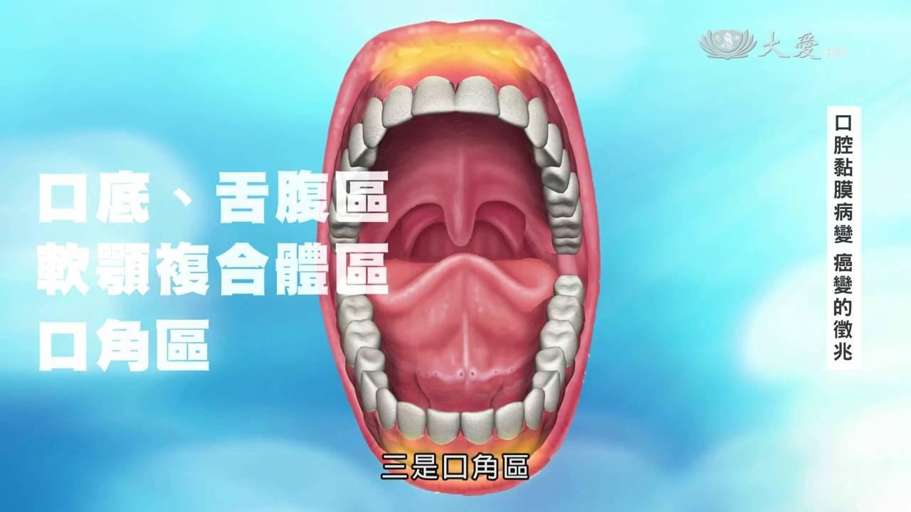 【口腔癌】口腔黏膜病變 癌變的徵兆