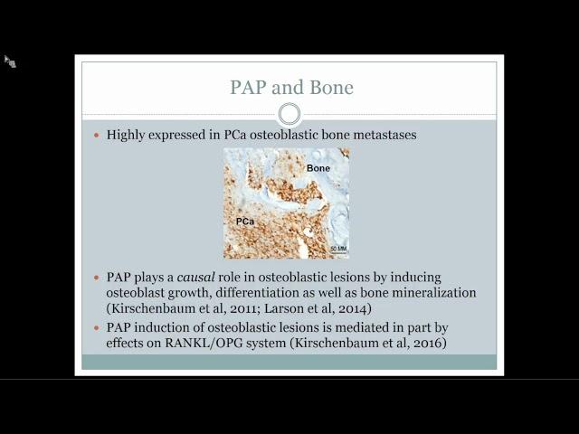 Prostate Cancer Osteoblastic Bone Metastases