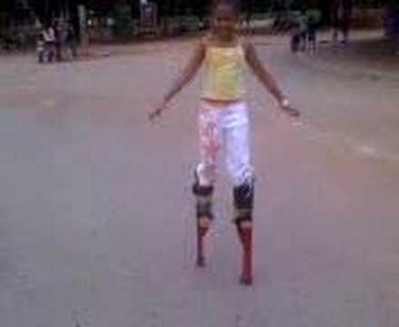 Ana Caroline perna de pau