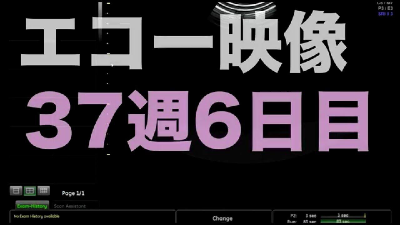 【エコー映像】のじょみんママ妊娠37週目 赤ちゃん3000グラム! - YouTube