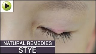 Stye - Natural Ayurvedic Home Remedies