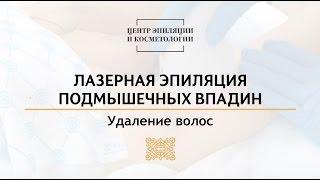 Лазерная эпиляция подмышек. Центр эпиляции и косметологии Казань(, 2016-10-07T06:42:25.000Z)