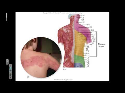 Micro Ch 16 Chickenpox and Smallpox